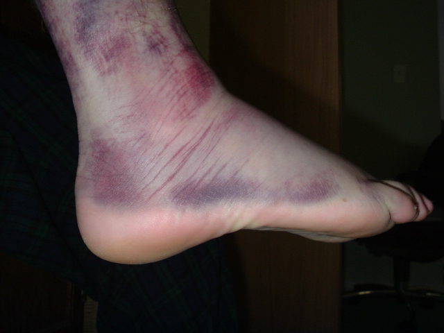 bruised and injured foot